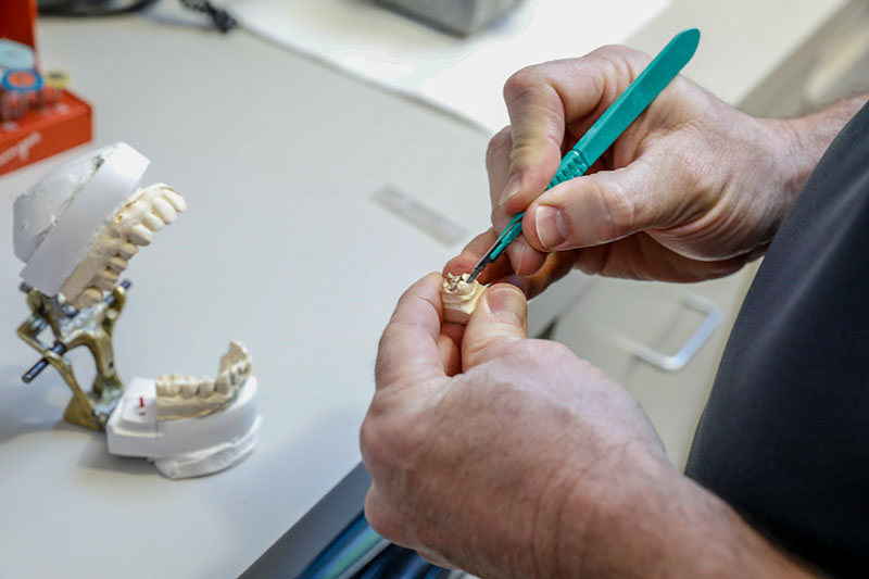 Dentist using tools to plan a dental implant